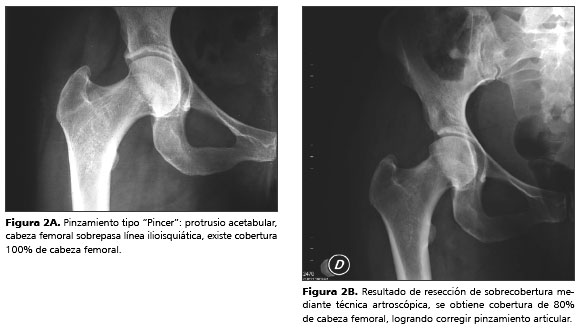 choque-femoroacetabular-diagnostico